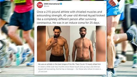 Maratoneja juossut Ahmad Ayyad sairastui koronavirukseen ja joutui 25 päiväksi koomaan. Sairastuminen sulatti lihakset.