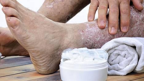 Psoriaasi on tulehduksellinen sairaus, ja pitkäkestoinen tulehdustila saattaa edistää myös syöpien kehittymistä.