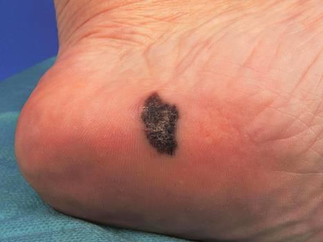 Tällaiselta tummalta läiskältä melanooma voi näyttää jalassa.