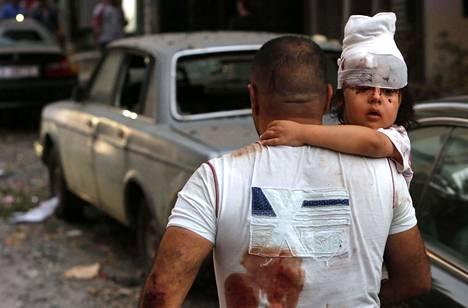 Mies kantoi loukkaantunutta lasta Beirutin kadulla.