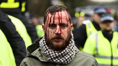 Kannattaja sai runsaasti verta vuotavan haavan päähänsä stadionin ulkopuolella ennen ottelun alkua.