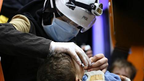 Pelastustyöntekijä hoitaa Doumassa epäiltyyn kaasuiskuun joutunutta lasta.