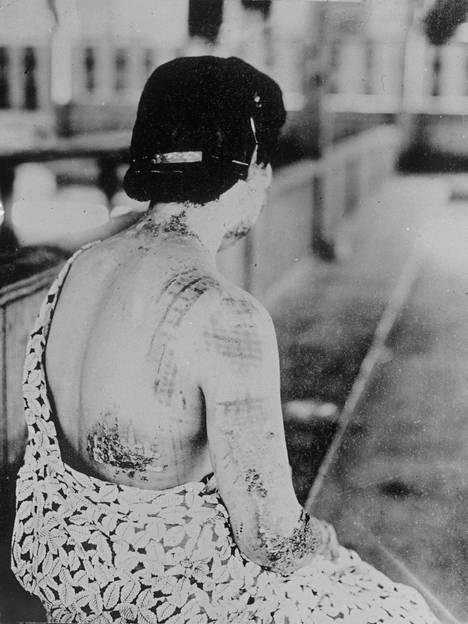 Pommin lämpöaalto poltti vaatteiden kankaan kuvion tämän Nagasakin uhrin selkään.