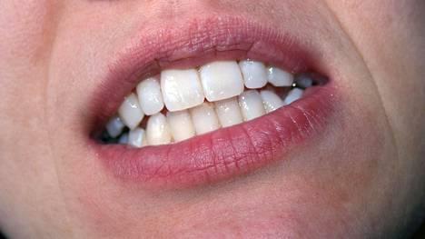 Havainnot vahvistavat näyttöä parodontiitin ja huonon suuterveyden terveyshaitoista ja osoittavat ienverenvuodon olevan merkki suurentuneista riskeistä.