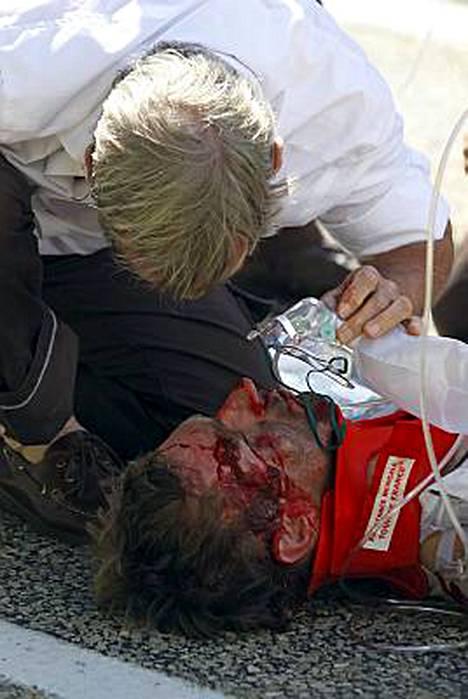 Jens Voigt sai vammoja lähinnä kasvoihinsa.