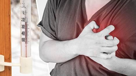 Sydänkohtaus iskee todennäköisemmin kylmällä ilmalla, toteaa tuore ruotsalaistutkimus. Kuvituskuva.