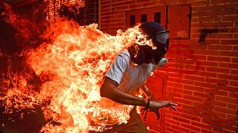 Tuleen syttynyt mielenosoittaja selvisi hurjasta tilanteesta ensimmäisen ja toisen asteen palovammoilla.