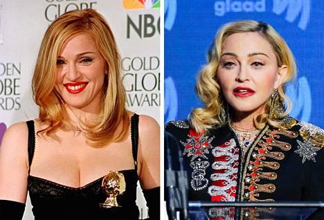 Madonna voitti Golden Globen roolistaan elokuvassa Evita vuonna 1997. Oikealla Madonna vuonna 2019.