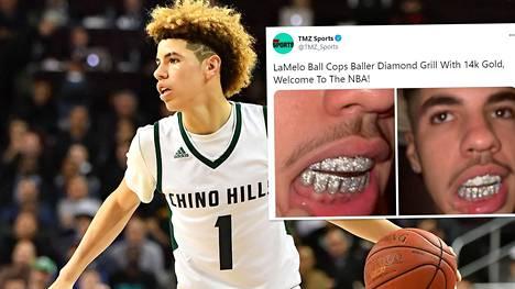 Tuore NBA-liigan kolmosvaraus LaMelo Ball juhlisti rahakasta sopimustaan hammaslisäkkeillä. Ball palloili ennen ammattilaiseksi siirtymistä Chino Hillsin lukion joukkueessa.
