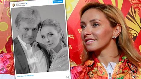 Jäätanssin olympiavoittaja Tatjana Navka ja hänen miehensä Dmitri Peskov sairastuivat koronavirukseen.