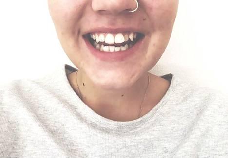 Kuvassa hampaat viikon aktiivihiilikokeilun jälkeen.