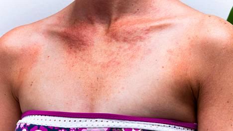 Melanoomalle altistavat riskitekijät tunnetaan: niitä ovat auringonvalolle herkkä ihotyyppi, ihon monet palamiskerrat ja pitkäaikainen uv-altistus. Lisäksi on tuntemattomia perinnöllisiä tekijöitä.