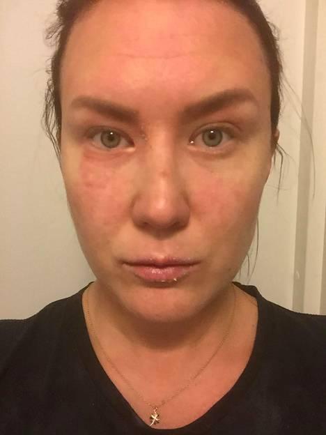 Atooppinen ihottuma näkyi Sinillä usein etenkin silmänympärysihossa, huulissa ja käsivarsissa.