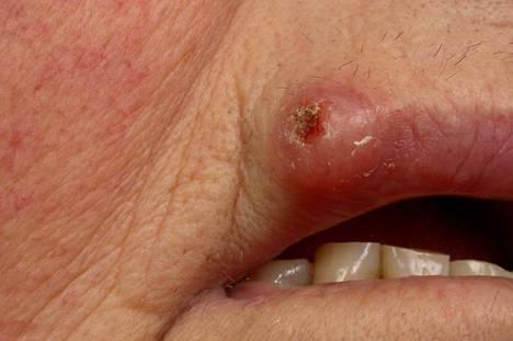 Myös huulet kannattaa suojata auringolta. Okasolusyöpää ja sen esiasteita nähdään usein huulissa.