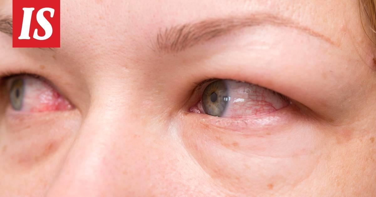 Silmätulehdus